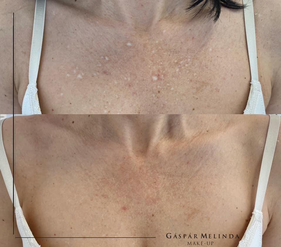 Vitiligo tetoválás eredménye