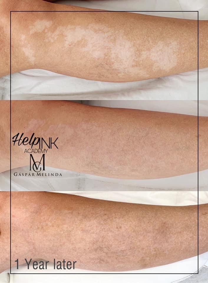 Vitiligo elfedése tetoválással