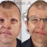 Orvosi tetoválás eredménye