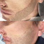 GM Makeup orvosi tetoválás - hegek eltüntetése