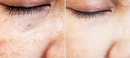 Bioneedling arcfiatalító kezelés