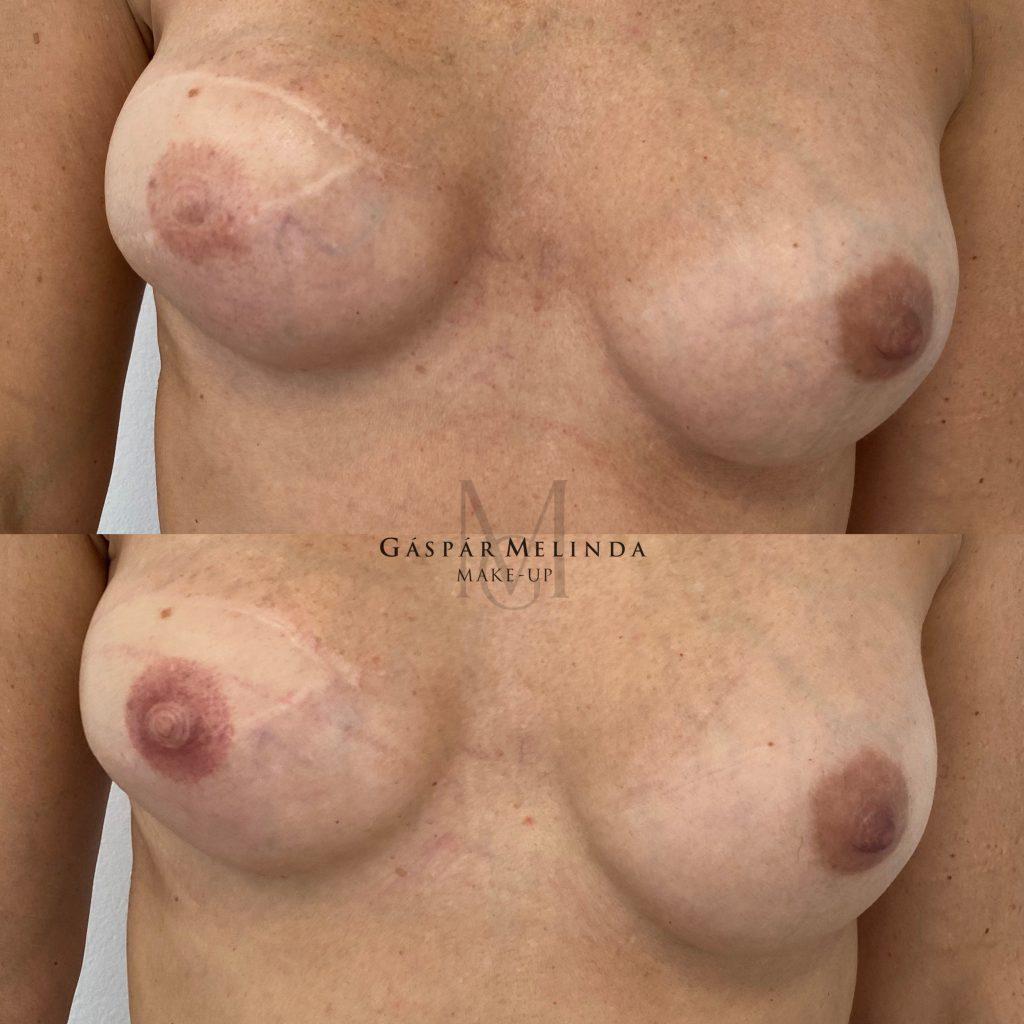 Areola rekonstrukció - GM Make Up