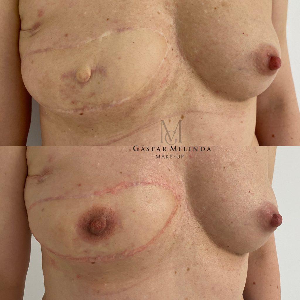 Areola orvosi tetoválás