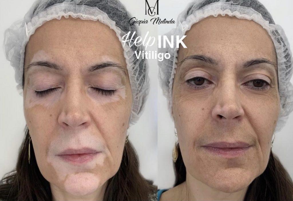 GM Make Up - vitiligo tetoválás