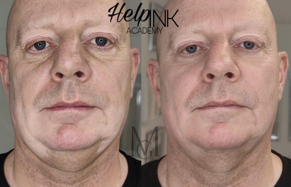 GM Make Up szalon - pigmentfolt eltávolítás