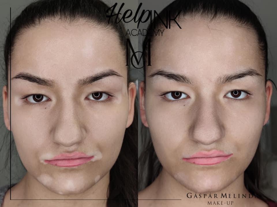 Vitiligo elfedése - GM Make Up