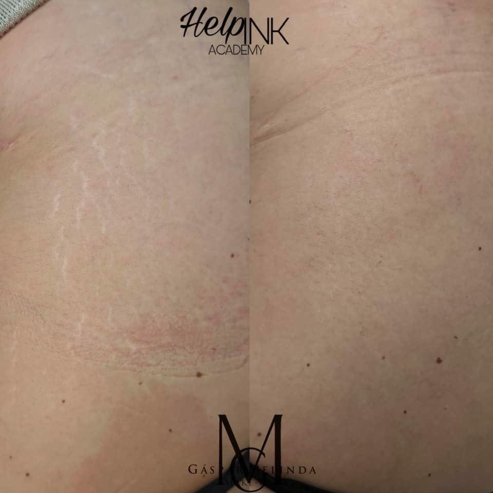 Stria elfedése orvosi tetoválással