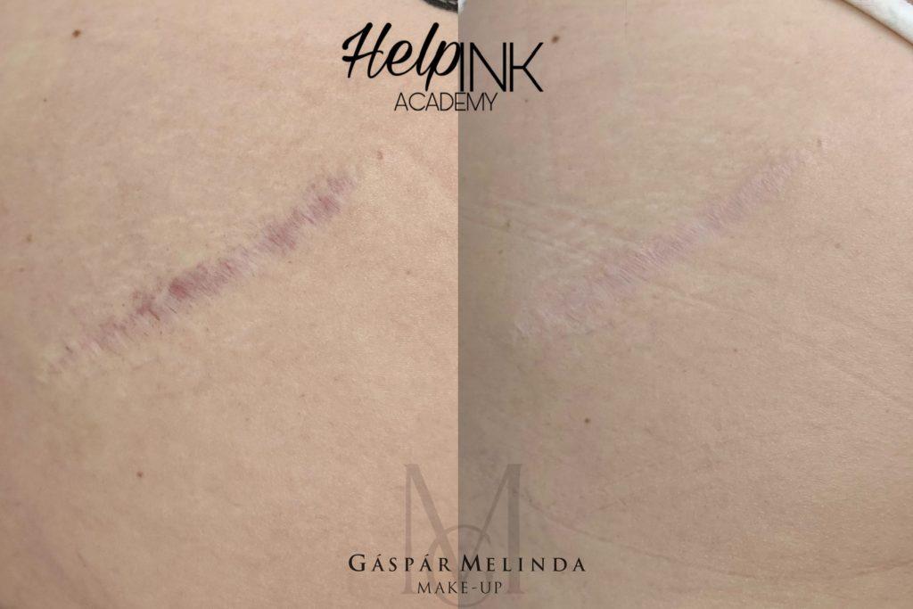 Orvosi tetoválás - hegek eltüntetése